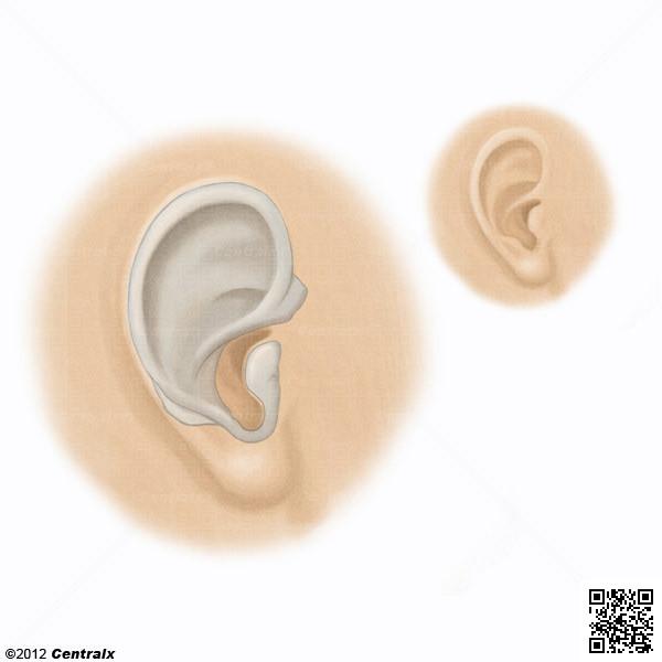 Cartilage élastique