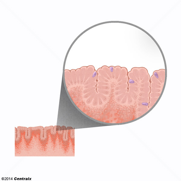 Cellules caliciformes