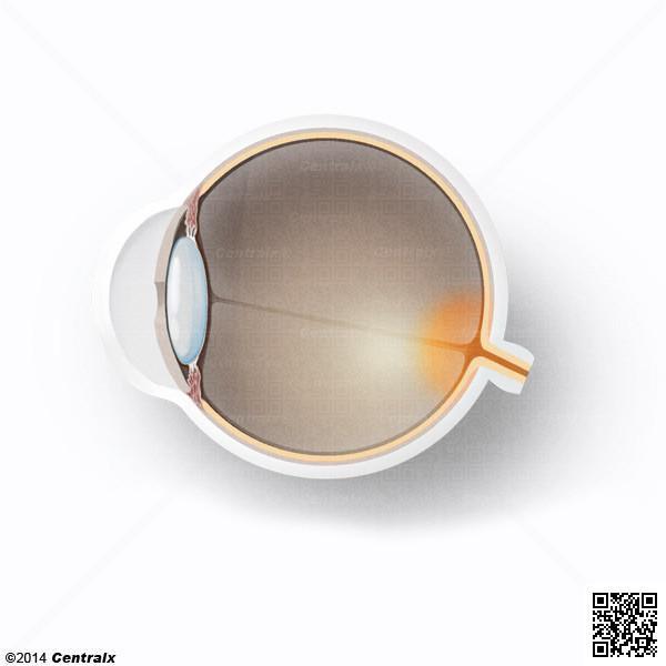 Papille optique