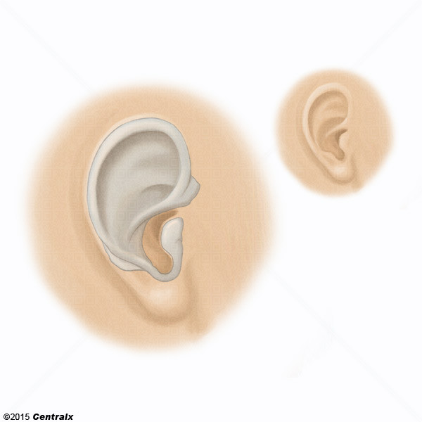 Cartilage oreille