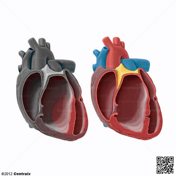 Septum du coeur