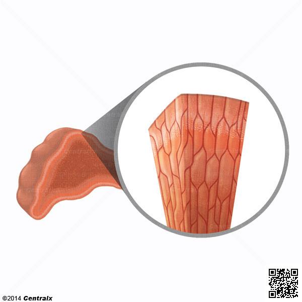 Cellules chromaffines