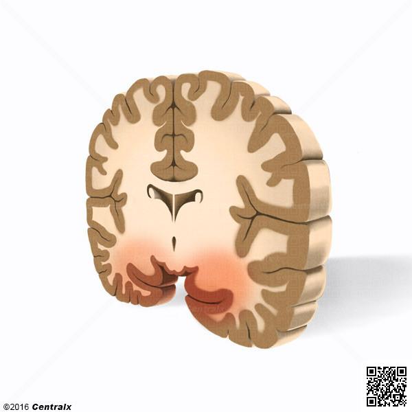 Cortex entorhinal