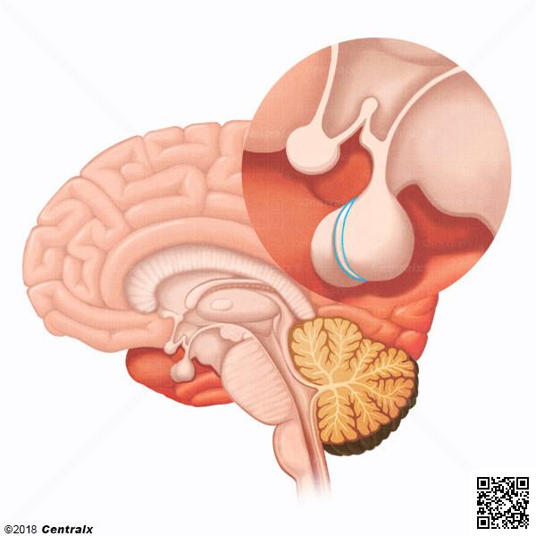 Hypophyse intermédiaire