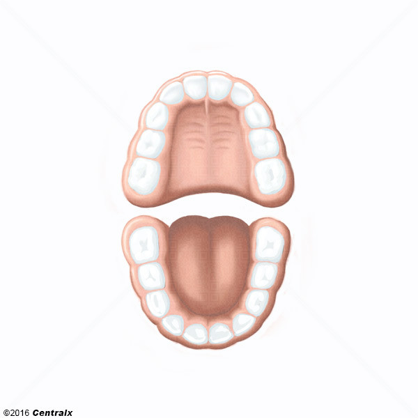 Denture déciduale