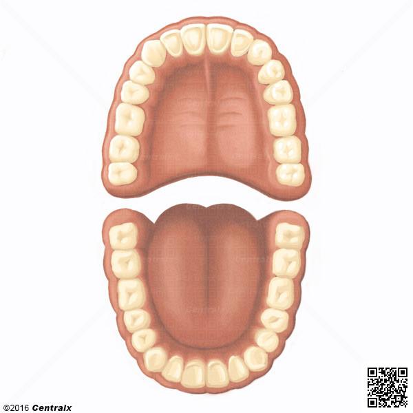 Denture permanente