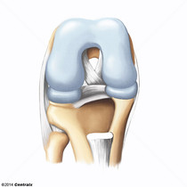 Cartilage hyalin