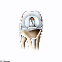 Ligament croisé antérieur