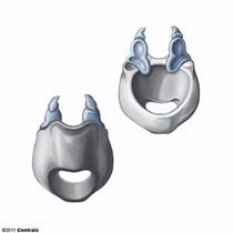 Cartilage aryténoïde
