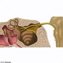 Nerf vestibulocochléaire