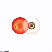 Pôle antérieur du bulbe de l'oeil
