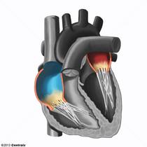 Atrium du coeur