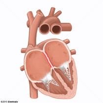 Septum interatrial