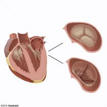Valve aortique