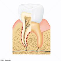 Composants dentaires