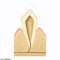 Apex de la racine de la dent