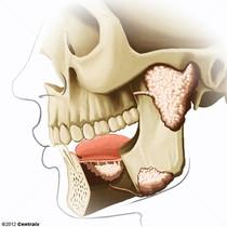 Glandes salivaires