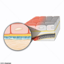 Membrane basale